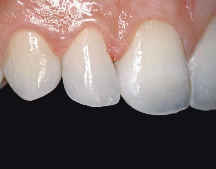 Рис. 7. Боковые резцы верхней челюсти реставрируются по аналогичной технологии.