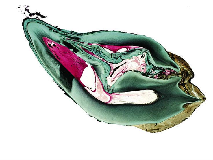 Рис. 8б. Аномалия dens invaginatus III типа по Oehlers (1957). Зуб значительно деформирован. Имеется латеральное сообщение ивагинации с пародонтом.