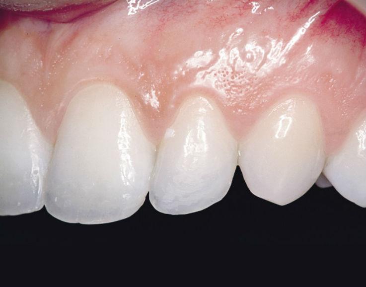 Рис. 8. Боковые резцы верхней челюсти реставрируются по аналогичной технологии.
