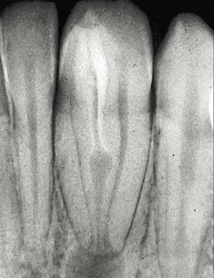 Рис. 9. Пример проведения лечения инвагинации: аномалия dens invaginatus III типа по Oehlers в области 32-го зуба, апикальный пародонтит. В данном случае проводилось только лечение инвагинации. Состояние через девять лет после проведения лечения: жалоб нет, патологических изменений не определяется, жизнеспособность (чувствительность) пульпы зуба сохранена.