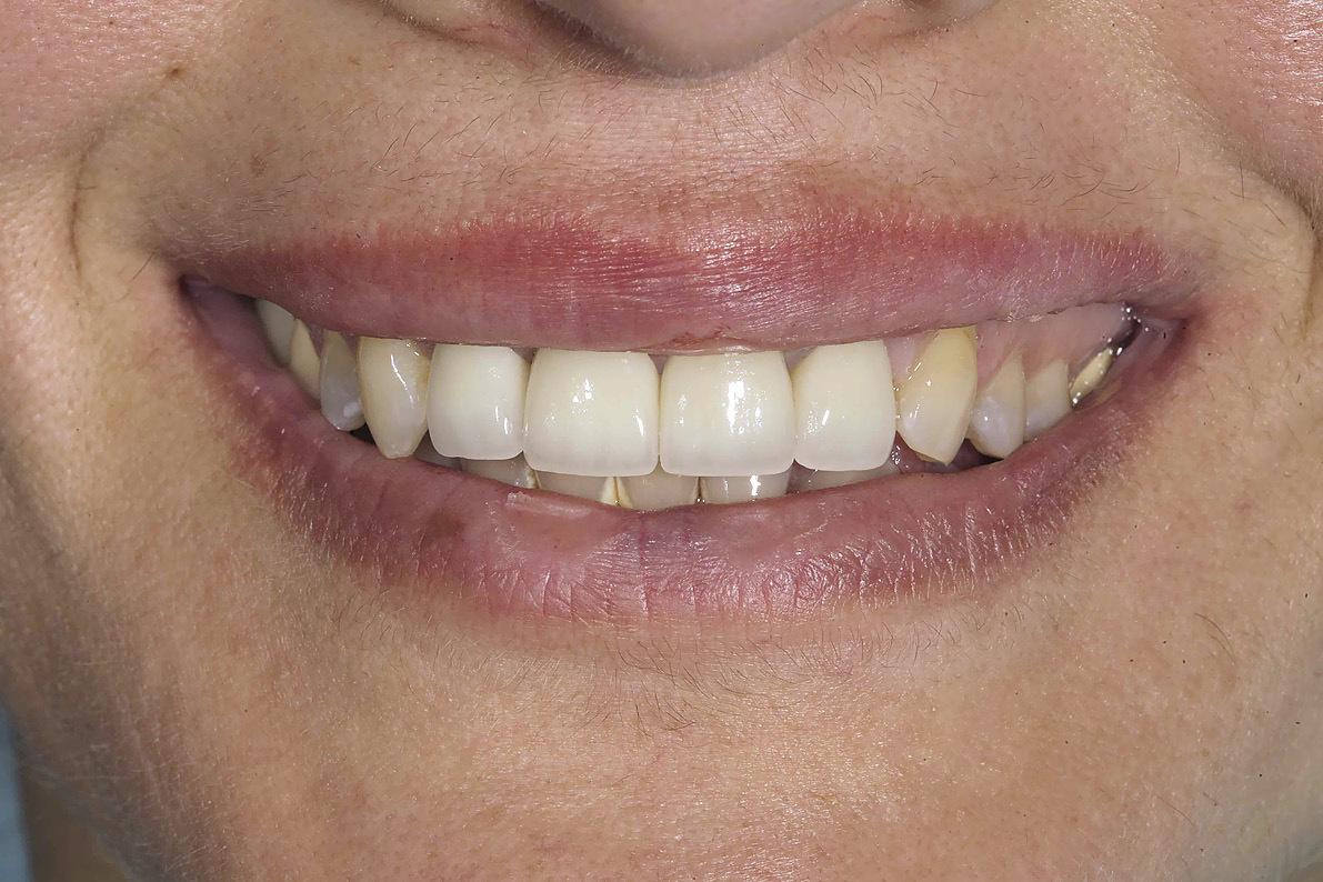 виниры на верхние зубы