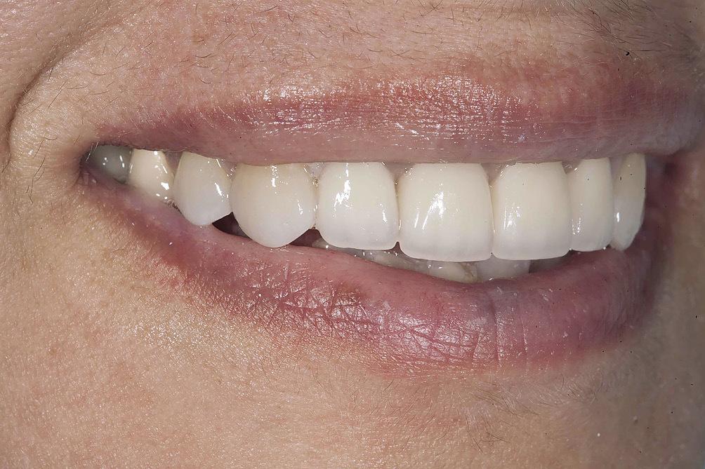 Чем покрывают передние зубы