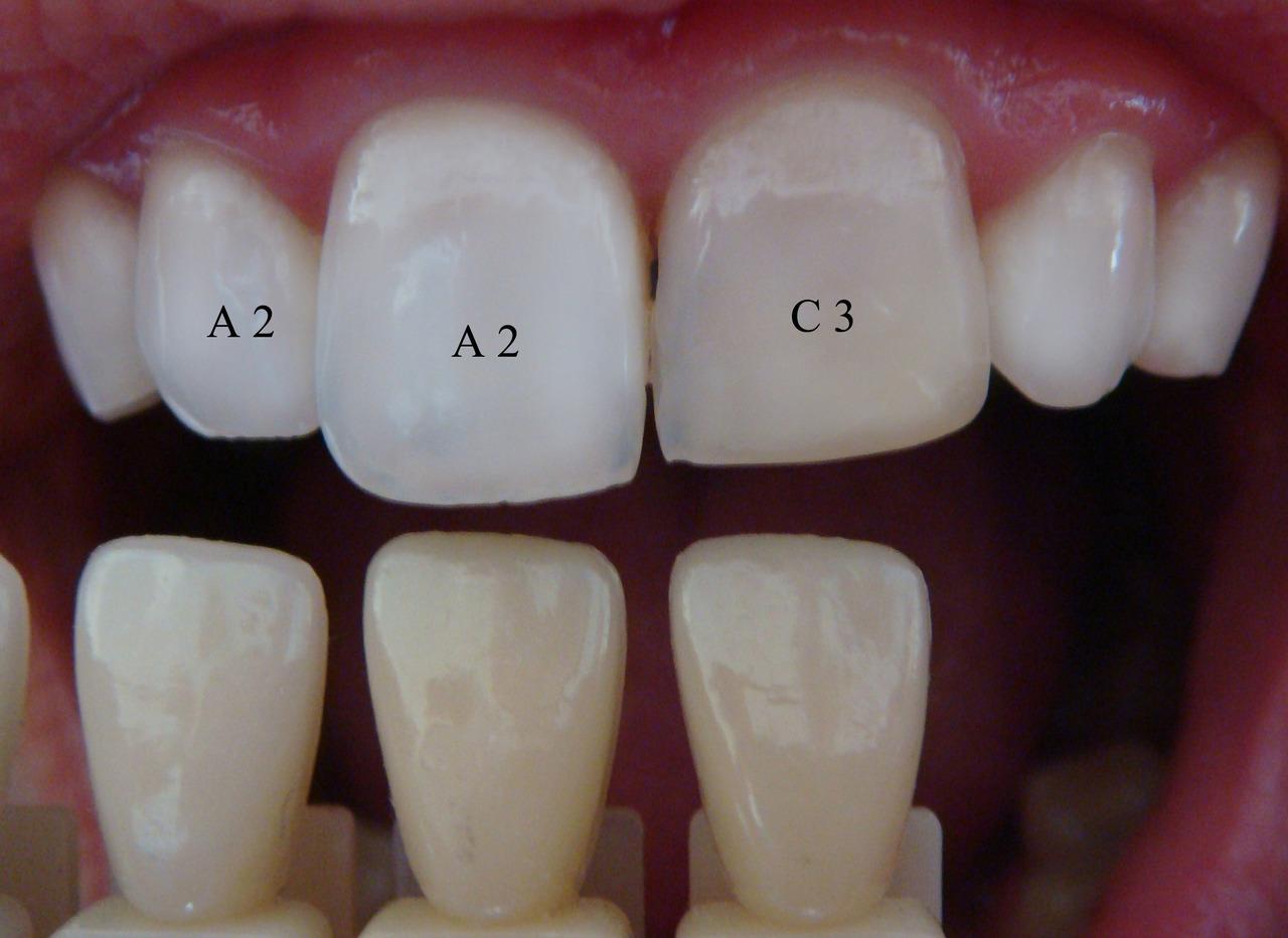 после отбеливания зубов болят зубы