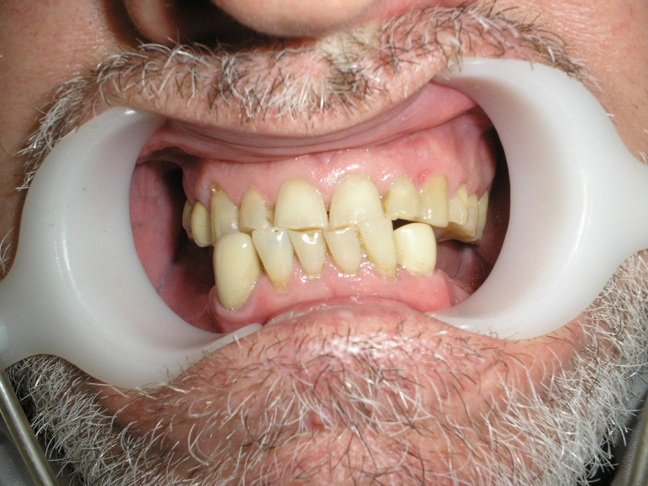 Рис. 1. Смыкание зубных рядов в привычной окклюзии.