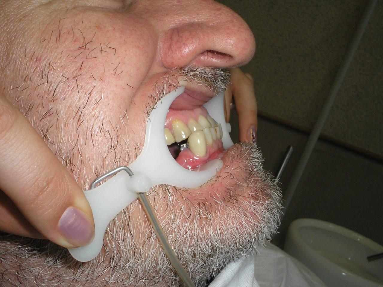 Рис. 2. Мезиальный сдвиг нижней челюсти.