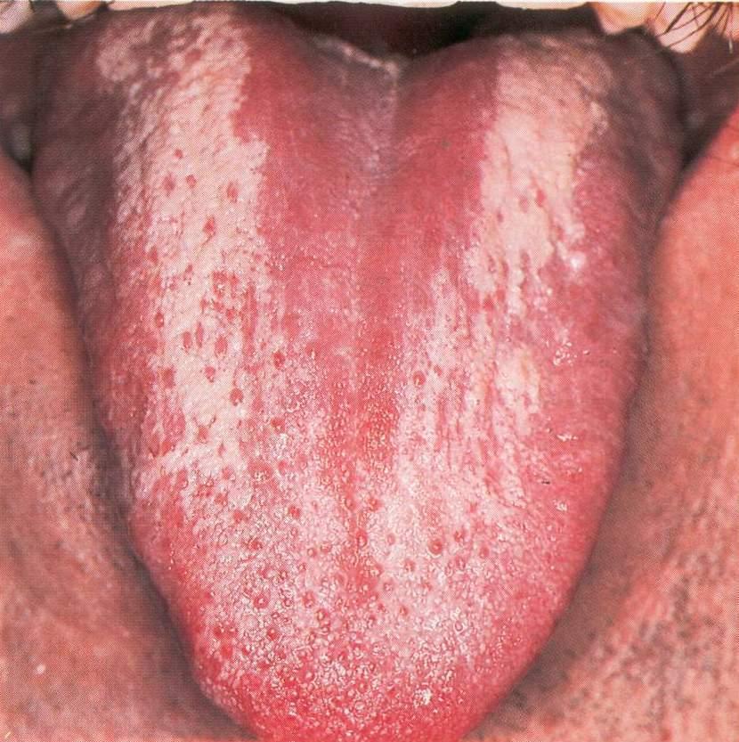 Рис. 2. Эриматозный кандидозный глоссит.
