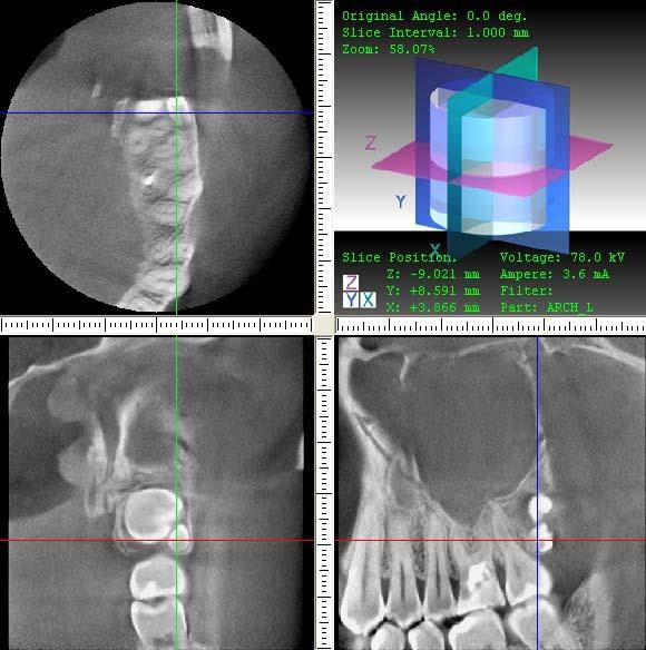 Рис. 2. 3ДКТ. Наличие ретинированнного дистопированного 28-го и ретинированного дистопированного 29-го зубов (сверхкомплектный, микродентия). Левосторонний гайморит.
