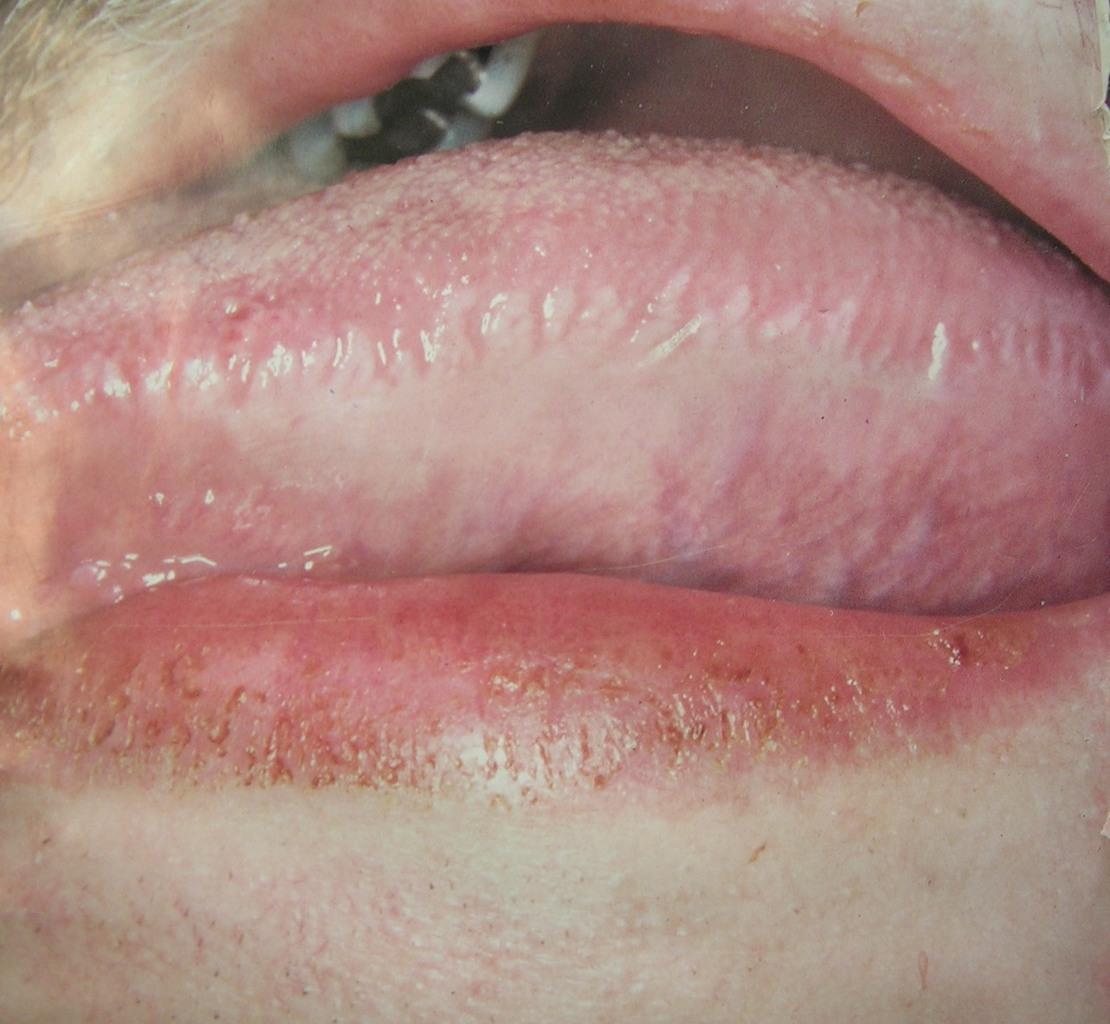 Рис. 6. Волосистая лейкоплакия на боковой поверхности языка.