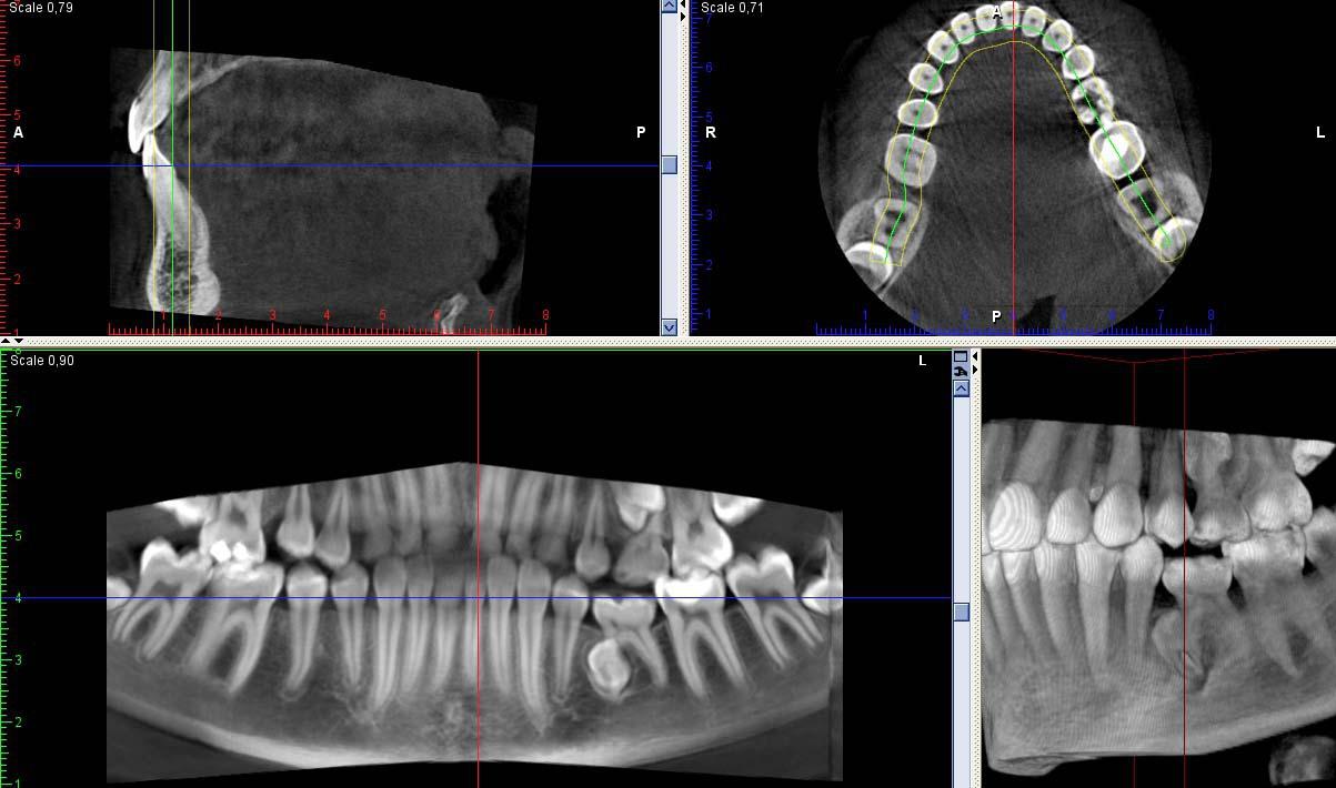 Рис. 10. 3ДКТ. Аномалии развития и расположения зубов: ретинированные, дистопированные 25-й и 35-й зубы, ретенция третьих моляров.