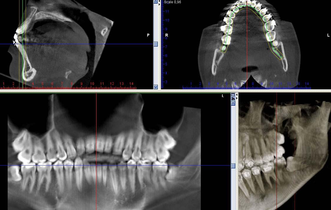 Рис. 11. 3ДКТ. Ретенция и дистопия 38-го и 48-го зубов, ретенция 18-го и 28-го зубов.