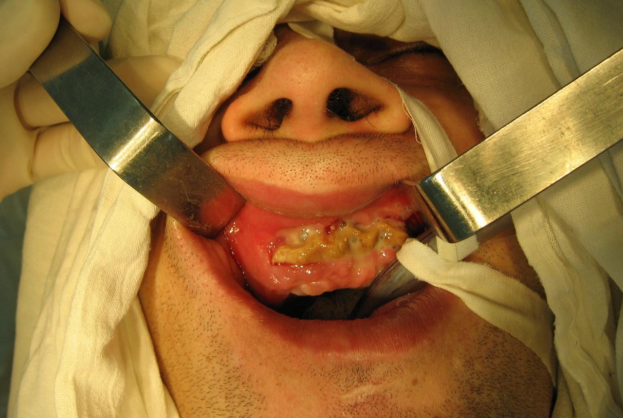 Рис. 2. Пациент Л., состояние альвеолярного отростка верхней челюсти до операции.