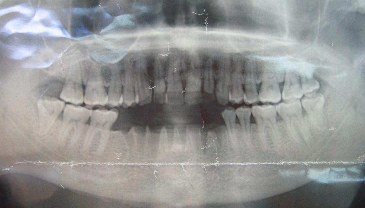 Рис. 5. Пациент Р., 31 год. Диагноз: хронический диффузный остеомиелит нижней челюсти. Самостоятельно удалил 7 зубов до обращения за медицинской помощью. Рентгенологическая картина заболевания при первичном обращении.