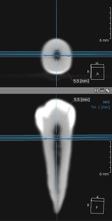 Рис. 1б. Аналогичное измерение того же зуба на компьютерной томограмме. Результат идентичен — 5,5 мм.
