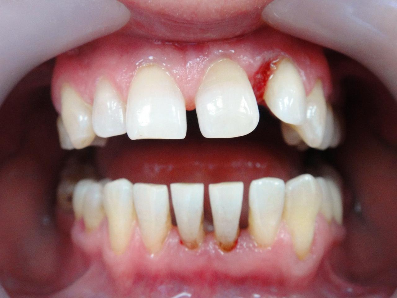 Рис. 1. Фотография полости рта пациента А., 35 лет, до лечения.