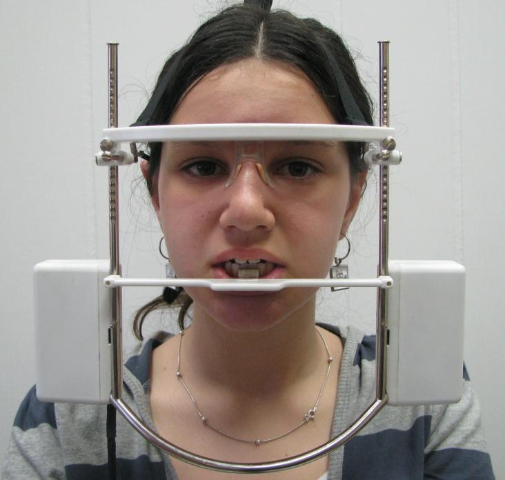 Рис. 1. Расположение «маски» Кинезиографа на голове обследуемого, магнитного датчика и центрирующей линейки.