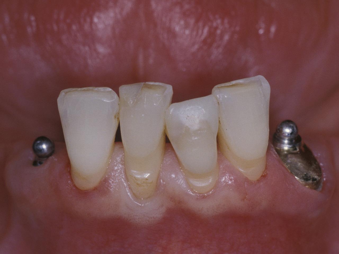 Рис. 2. Сочетание в одной протезной конструкции сферического аттачмента, фиксируемого в корне естественного зуба, со сферическим аттачментом на имплантате. Глубоко установленный имплантат и толстый слой слизистой оболочки способствуют тому, что ограниченный по высоте сферический аттачмент большей частью перекрывается слизистой оболочкой. Такая ситуация негативно сказывается на возможности соблюдения гигиены.
