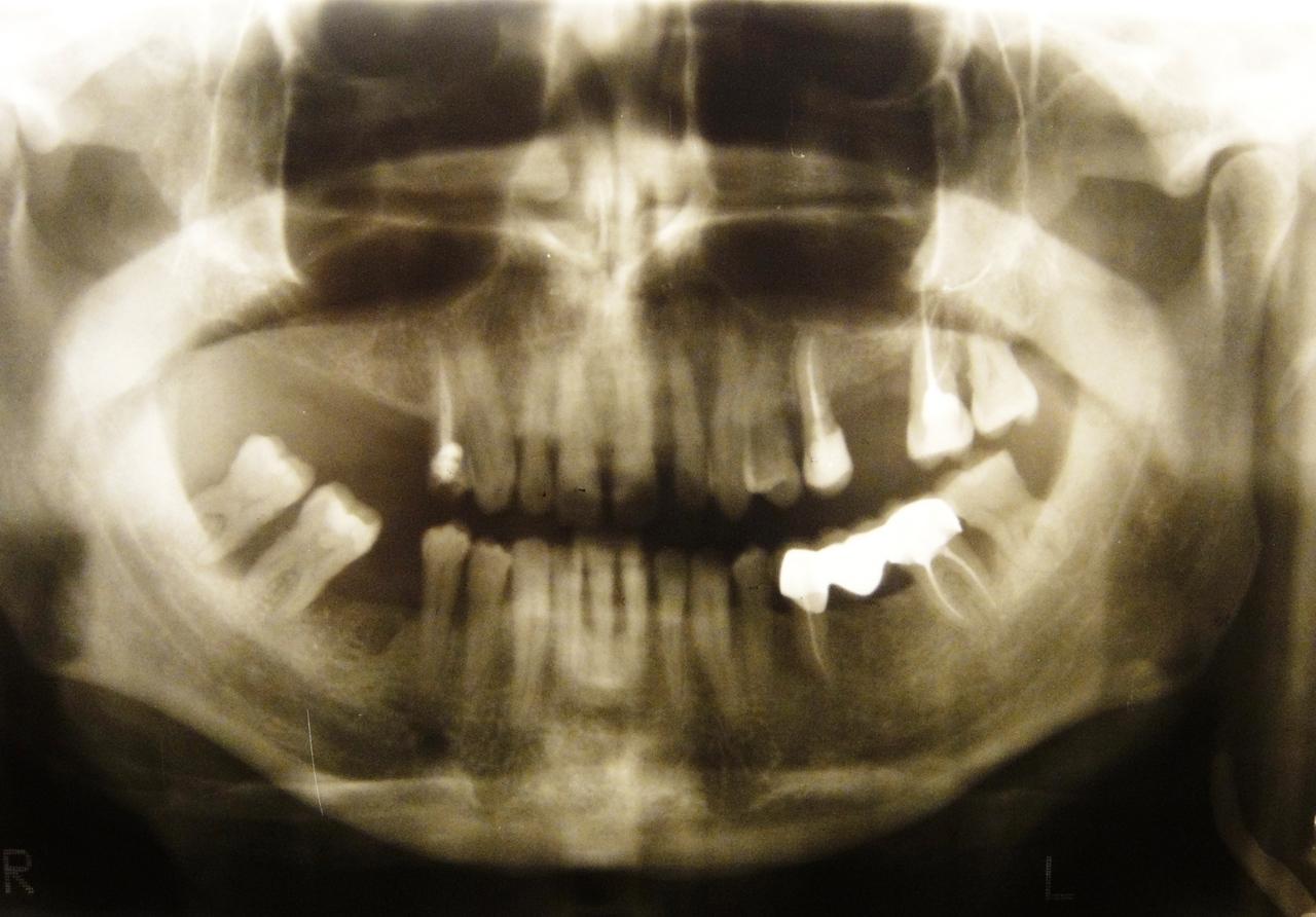 Рис. 2. Ортопантомограмма пациента А. до лечения.