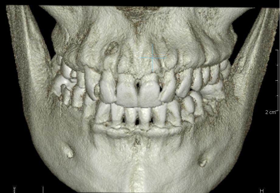 Рис. 3. Объемная модель сканированной области, VR — объемная визуализация в диапазоне костной плотности.