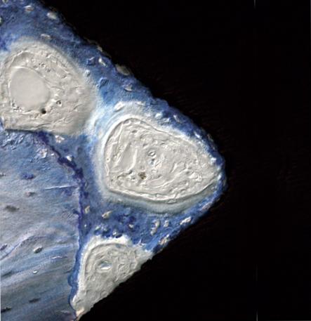 Рис. 3. Контакт остеобластов с фтормодифицированной поверхностью.