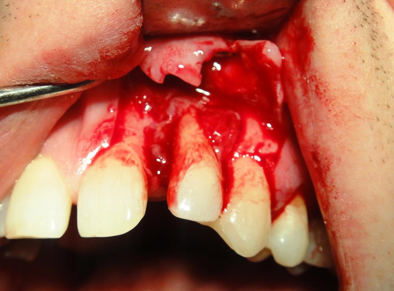 Рис. 5. Отслоен слизисто-надкостничный лоскут в области 21, 22, 23-го зубов.