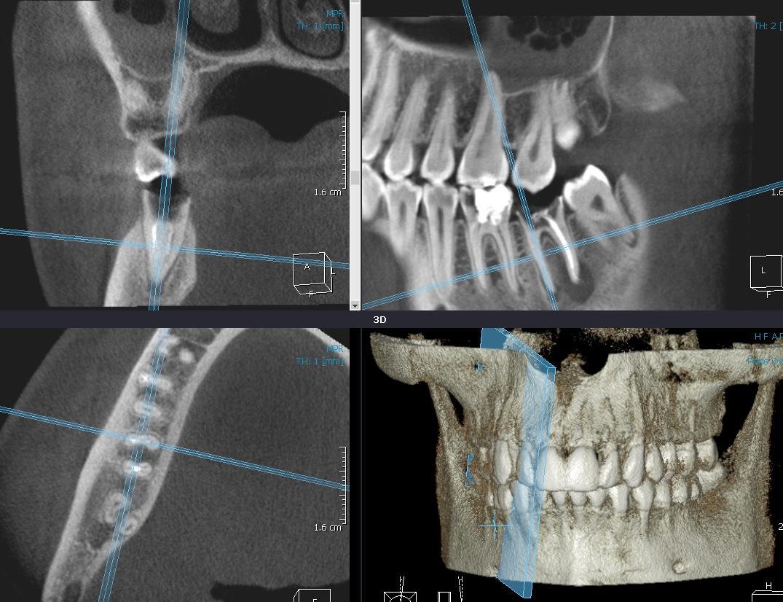 Рис. 5. MPR — мультипланарная реформация в процессе визуализации мезиального корня зуба 47 (пояснение в тексте).
