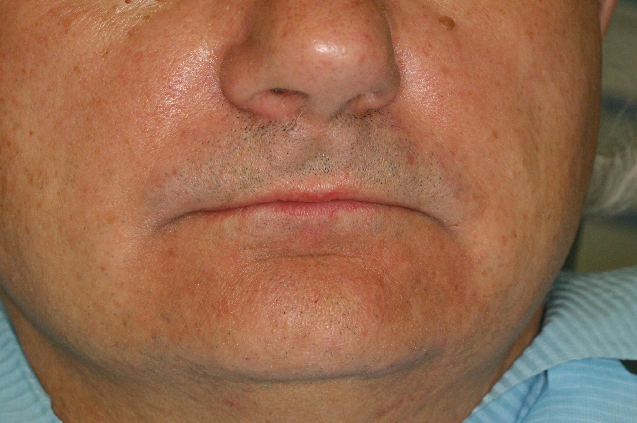 Рис 5а. Пациент, 65 лет, с ОМД, снижением нижней трети лица: фас.