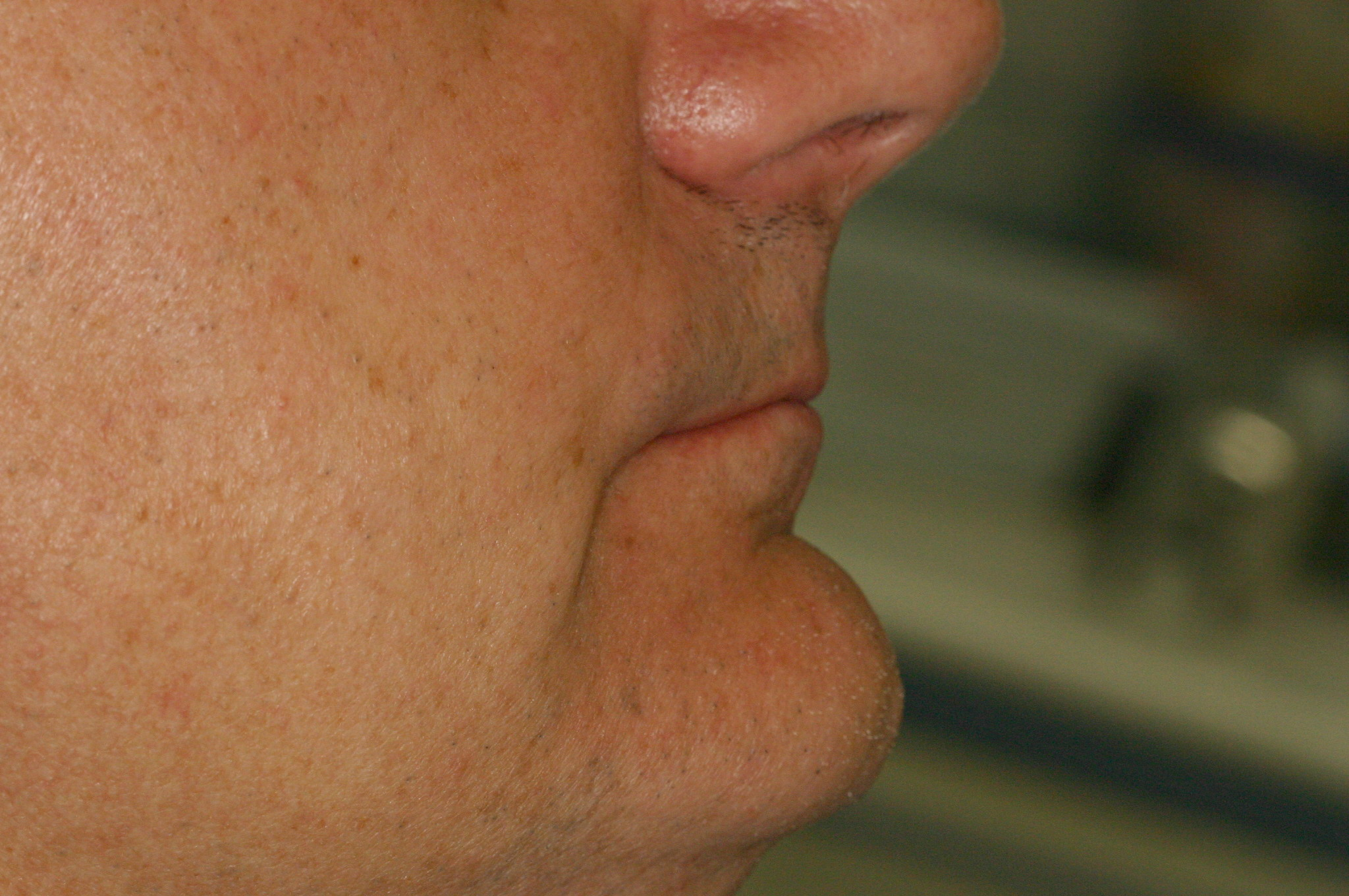 Рис. 5б. Пациент 65 лет с ОМД, снижением нижней трети лица: профиль.