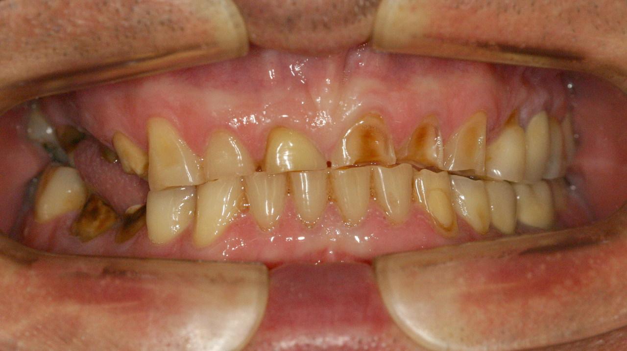 Рис. 6. Патологическая стираемость зубов.