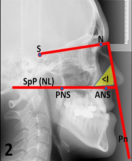 Рис. 2. Определение инклинационнго угла (< I) на боковой телерентгенограмме головы пациента, 24 лет, с мезиоокклюзией по Schwarz.