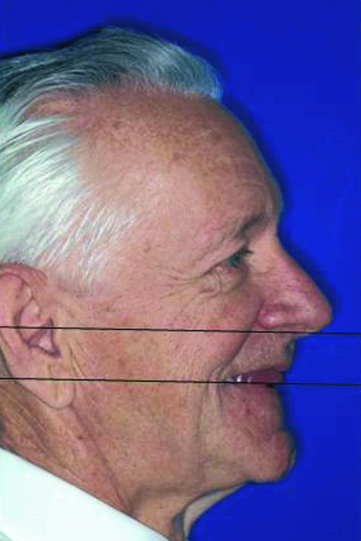 Рис. 3. Расположение воскового валика на верхнюю челюсть параллельно Камперовской плоскости (верхний край наружного слухового прохода — Spina nasalis anterior).
