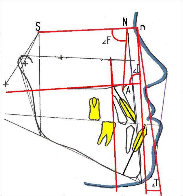 Рис. 5. Контуры, скопированные с боковых телерентгенограмм головы пациента с мезиоокклюзией без врожденной патологии: фациальный угол SNA равен 85,6°, инклинационный угол (SpP Pn) — 92° (антепозиция верхней челюсти и антеинклинация челюстей — 9-й тип профиля лица по A. M. Schwarz).