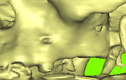 Рис. 1. Общий вид фрагмента верхней челюсти по данным CT пациентки K.
