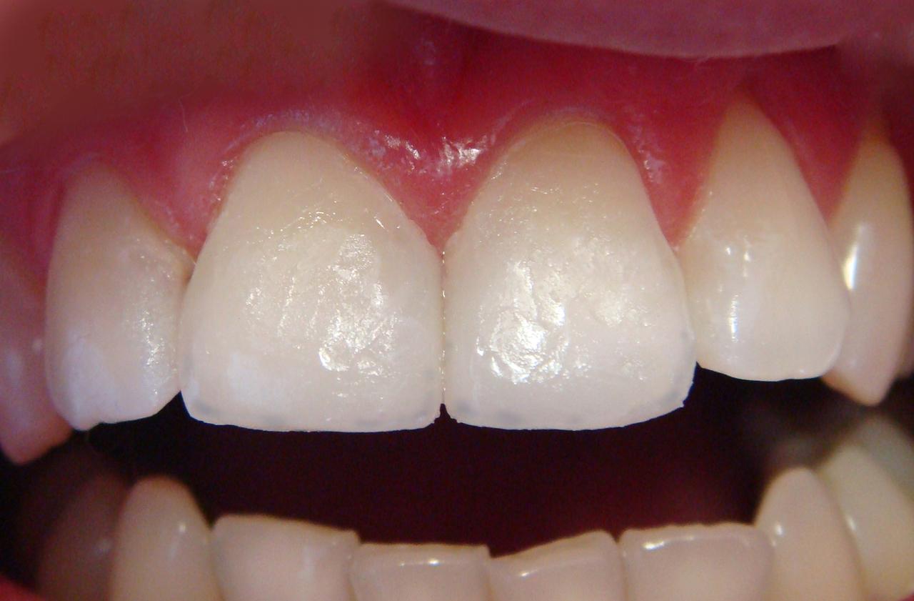 Рис. 11. Вестибулярная поверхность покрыта прозрачным композитом.