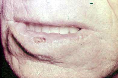 Рис. 4. Ограниченный гиперкератоз.