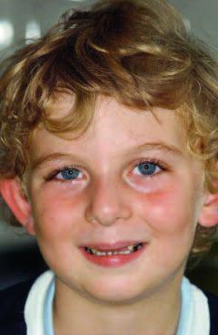 Рис. 1. Исходная ситуация: портретная фотография 5-летнего пациента.