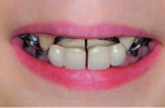 Рис. 3. Исходная ситуация в полости рта. Установленный бюгельный протез не соответствует требованиям.