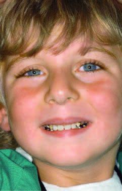 Рис. 8. Заключительная фотография юного пациента с установленным в полости рта детским съемным протезом.