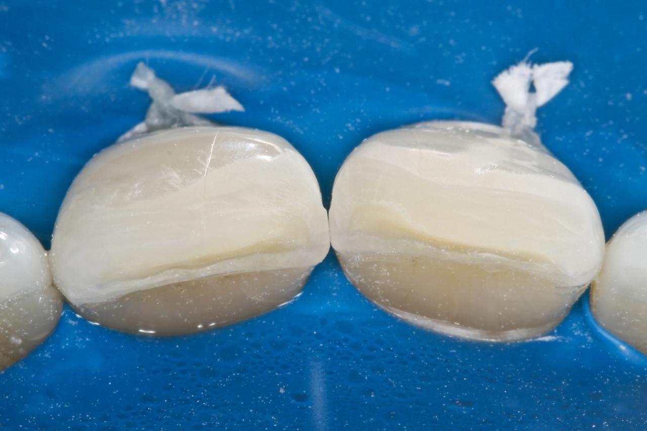 Рис. 4. Вид зубов после изоляции и препаровки.
