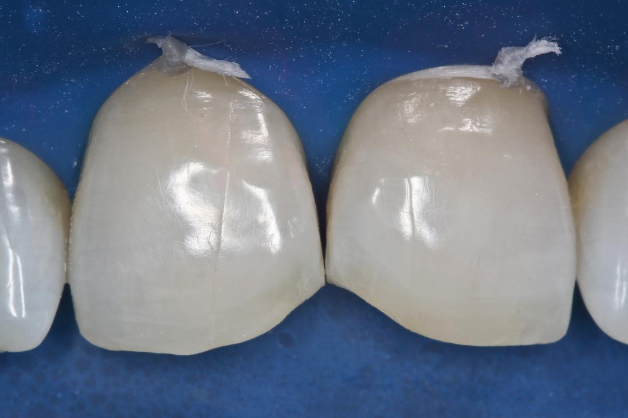 Рис. 5. Зубы были подвергнуты пескоструйной обработке.