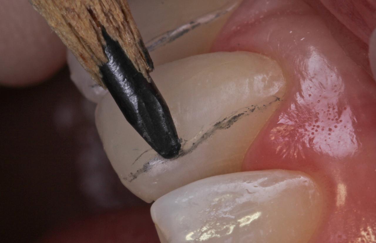 Рис. 8. Для визуализации контуров и граней зуба удобно пользоваться карандашом.
