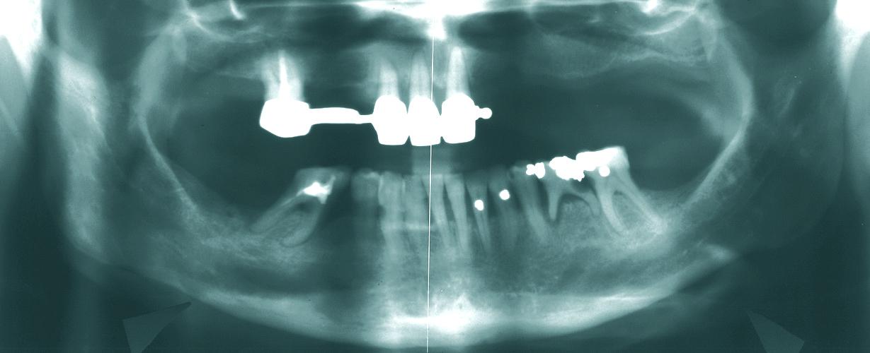 Рис. 1. 1-й клинический случай, пациентка 56 лет. ОПТГ: персистенция 75-го зуба, расширение пародонтальной щели, кариес, аплазия 45-го и 35-го зубов, в области 85-го зуба почти полное закрытие дефекта за счет мезиального наклона 46-го зуба.