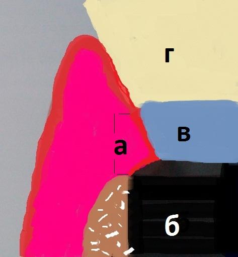 Рис. 1: а — биологическая ширина, б — имплантат, в — абатмент, г — коронка.