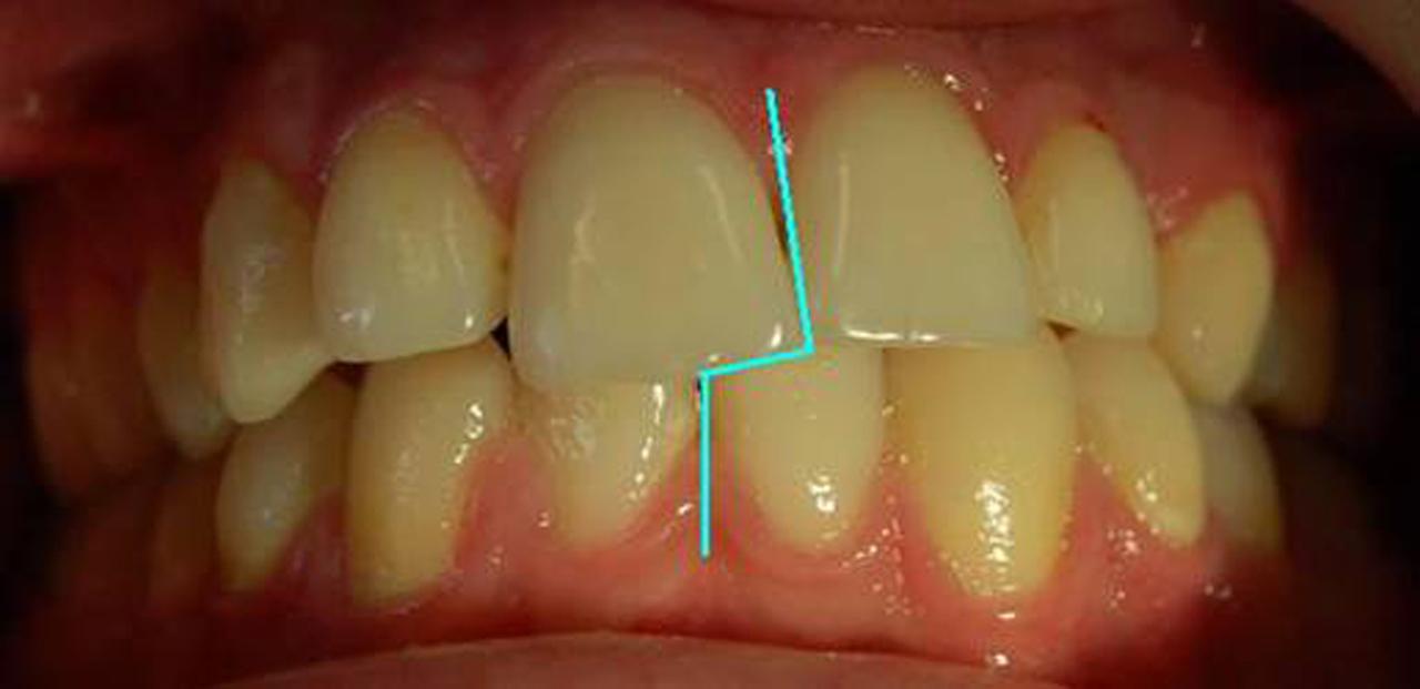 Рис. 1. Зубные ряды пациента А.