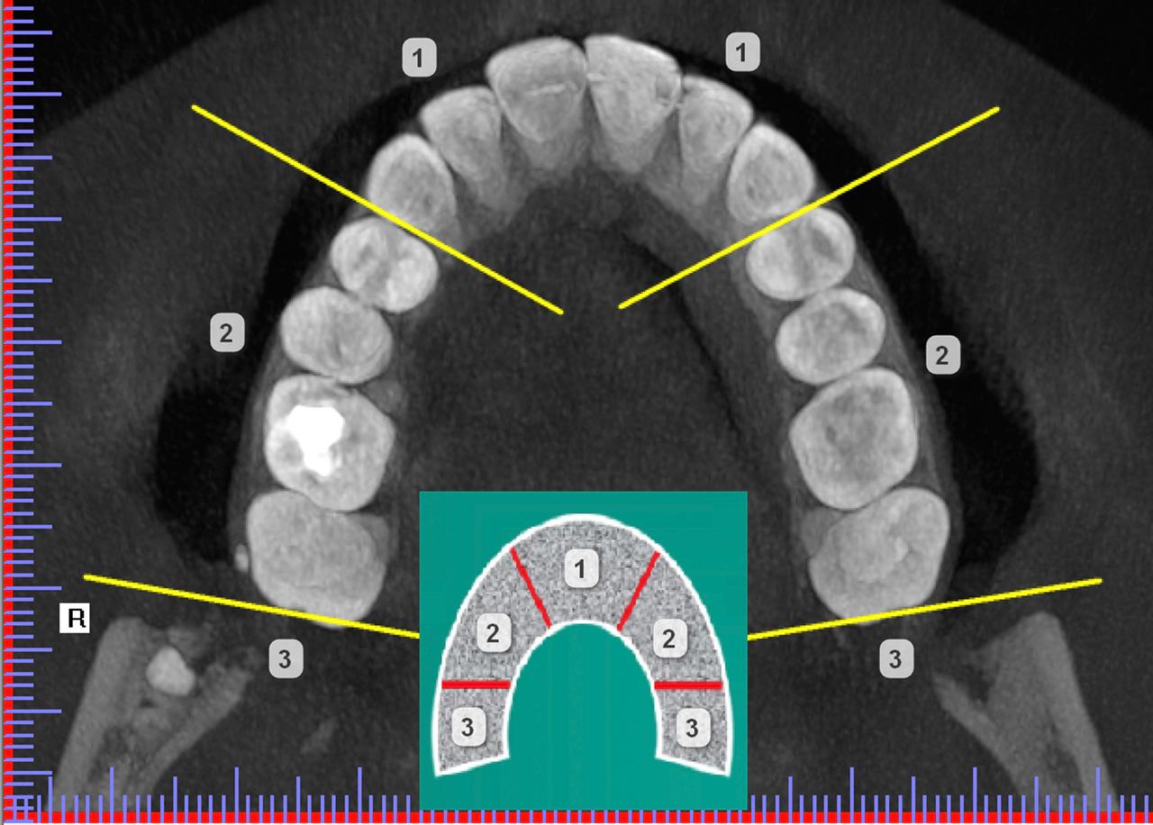 Рис. 5. Схема классификации СКЗ по топографии нахождения в зубной дуге согласно МКБ-10. 1 — область положения мезиоденса, 2 — параденса, 3 — дистоденса.