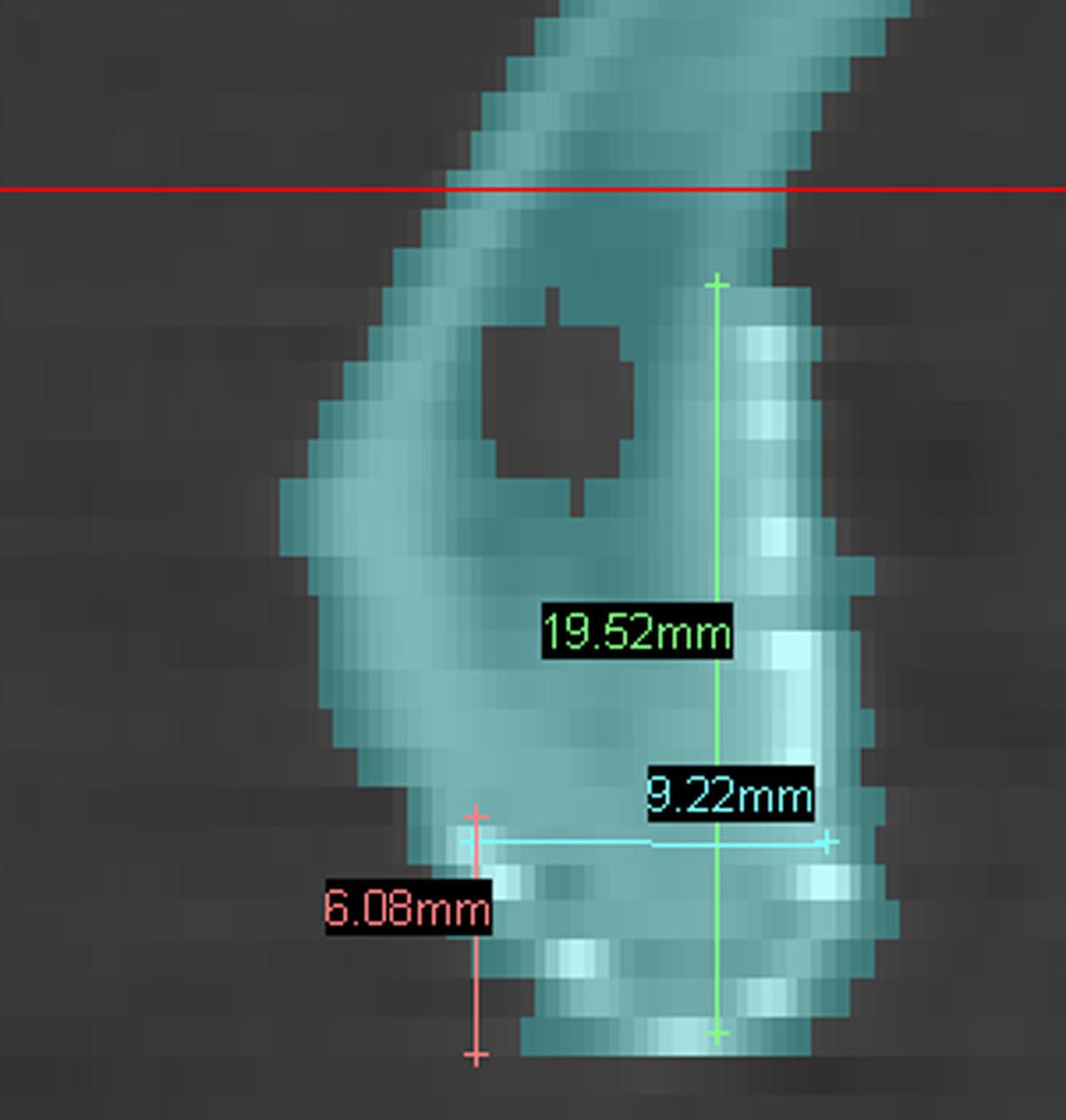 Рис. 6. Линейные размеры СИ в зоне сагиттального сечения.
