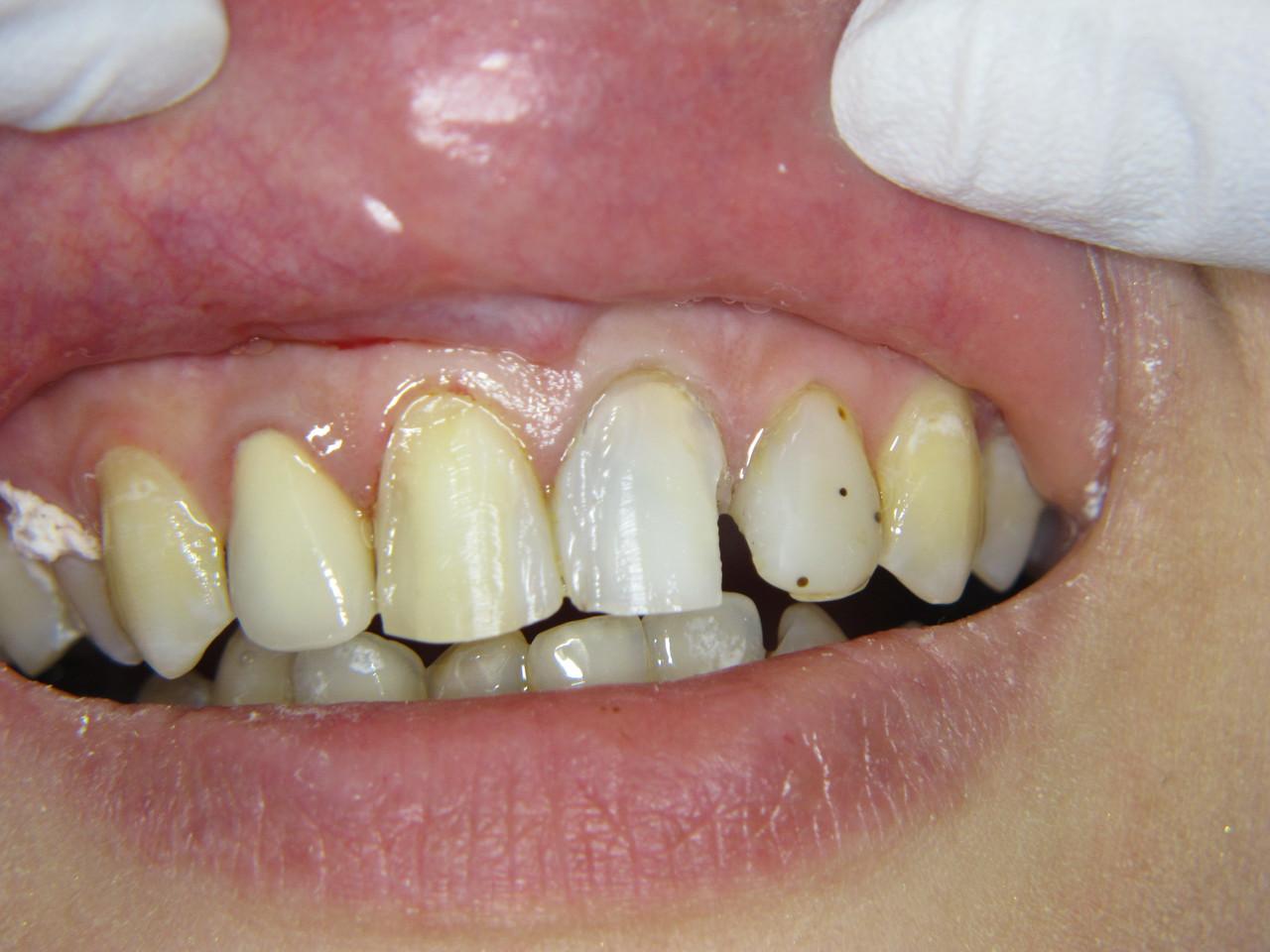 Рис. 5. Вид зубов 1.1 и 2.1 после удаления «старых» пломб.