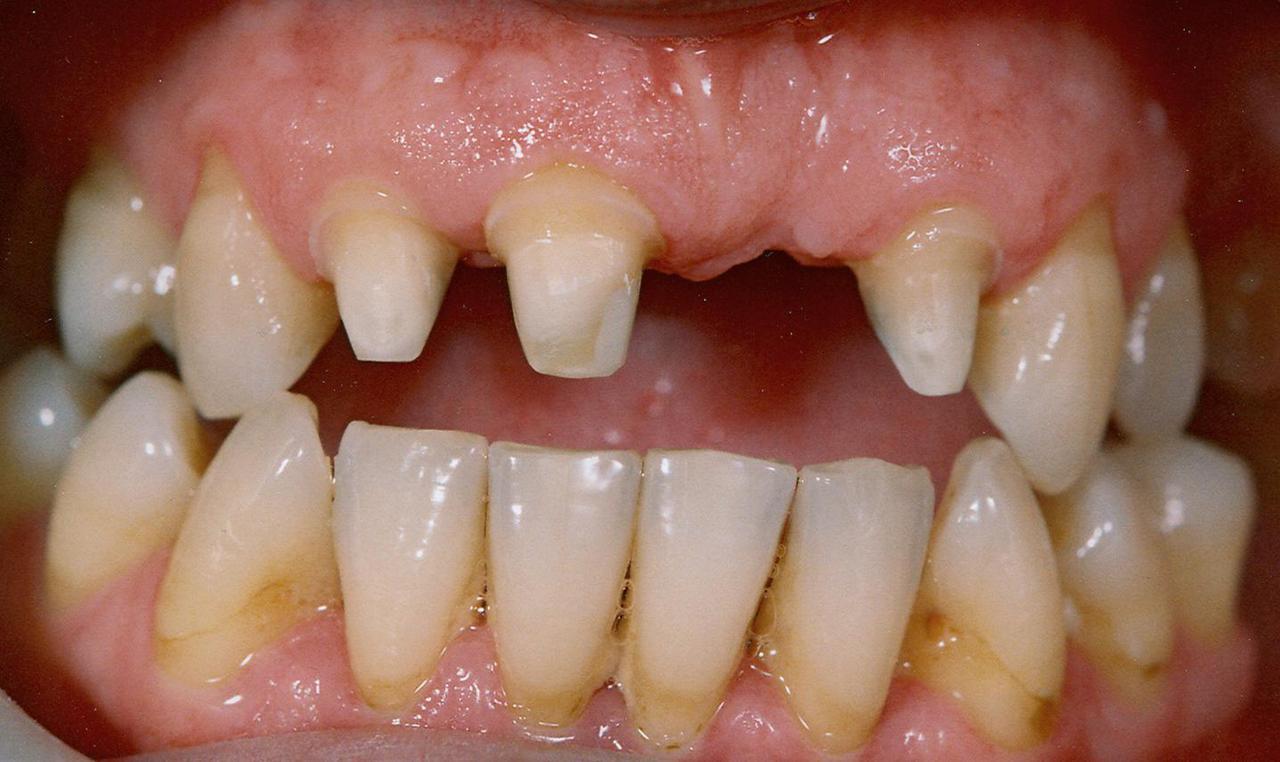 Рис. 10. Пациент И. после этапа препарирования зубов: десна без признаков травмы.