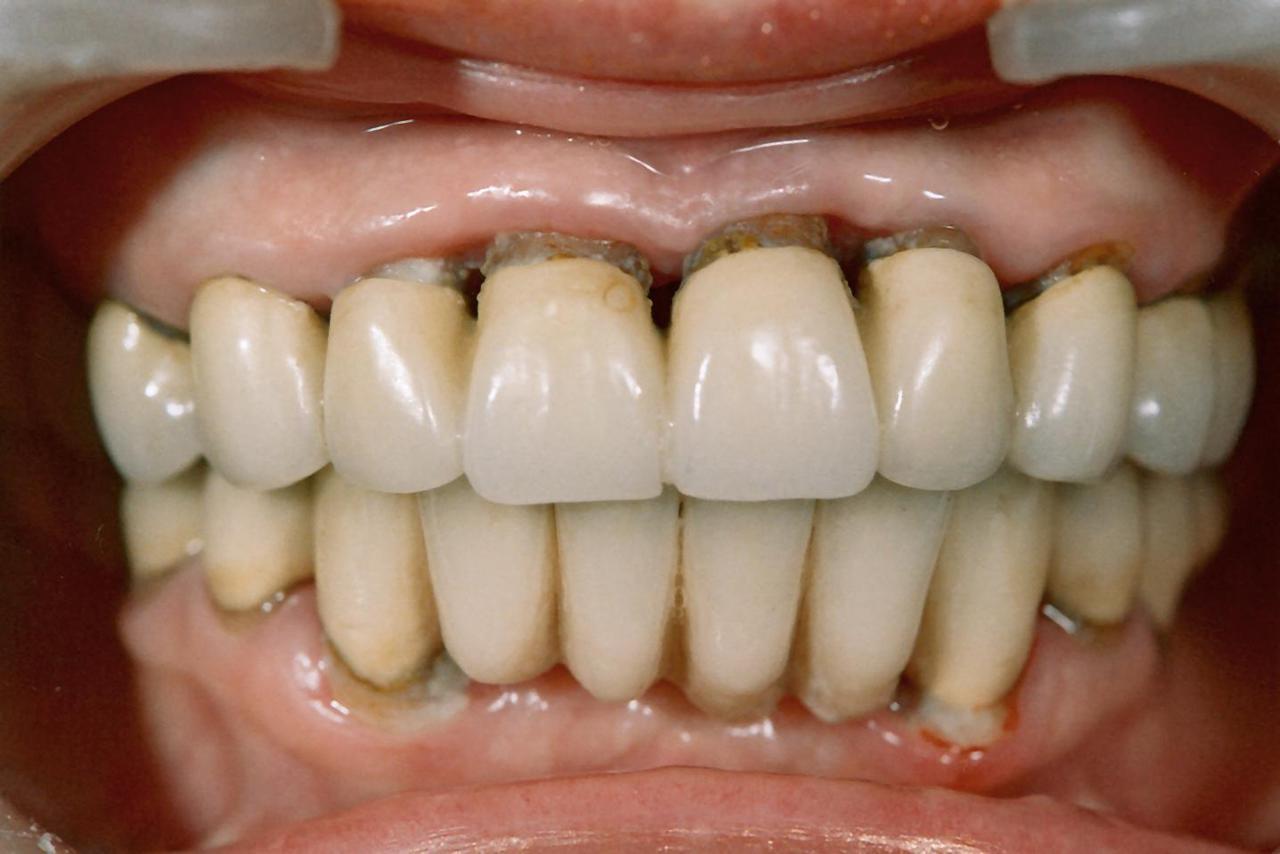 Рис. 4. Пациентка В., 2007 г. Перед проведением планового пародонтологического лечения.