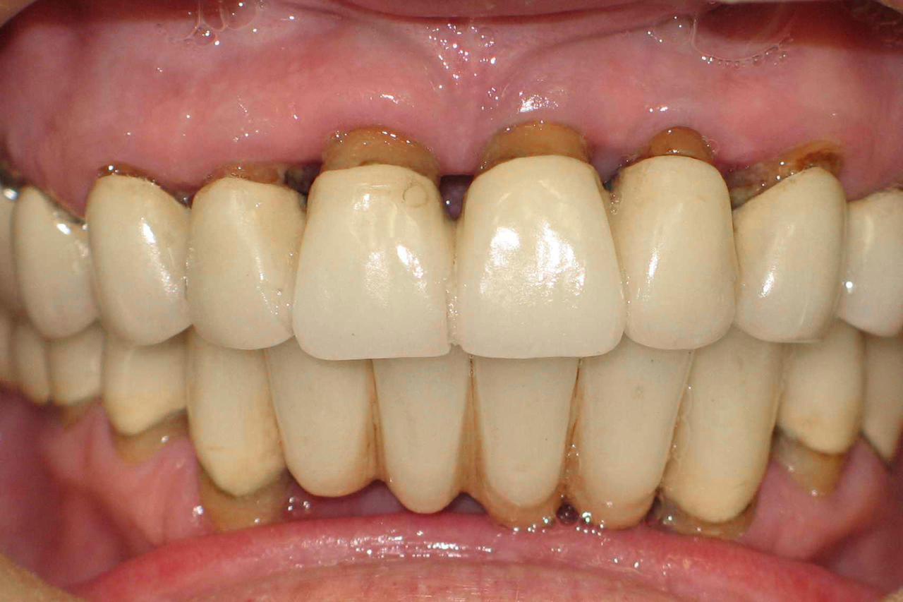 Рис. 5. Пациентка В., 2011 г.