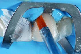 Рис. 20. Для удаления излишков материала используются специальные кисточки особой формы (Flat Brush, GC).